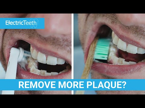 Does An Electric Toothbrush Remove More Plaque?
