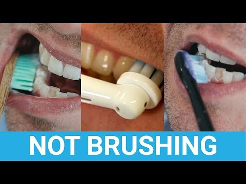 What Happens If You Don't Brush Your Teeth