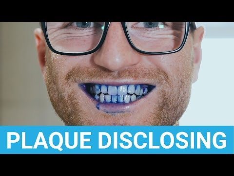 How To Use Plaque Disclosing Tablets