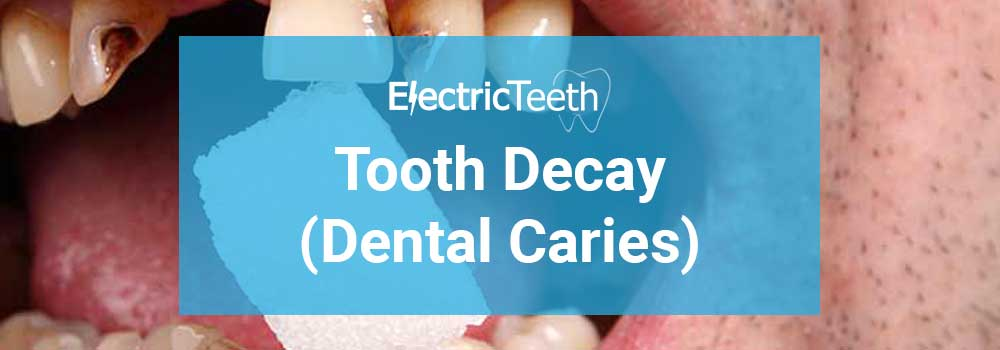 Tooth Decay - Header Image