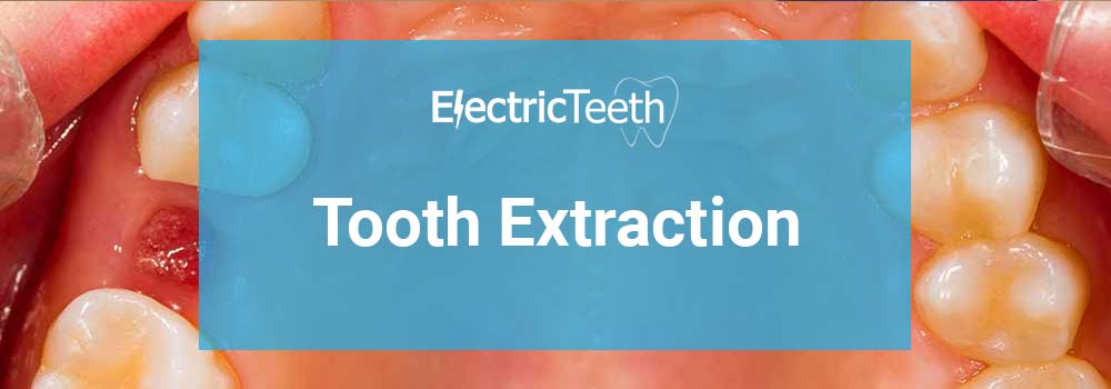 Tooth extraction - header image