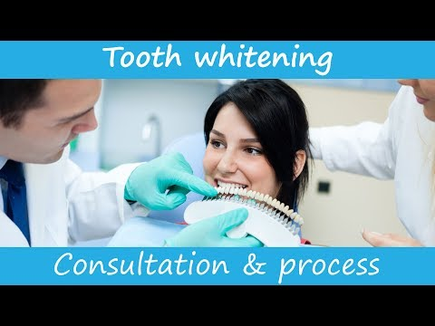 Teeth whitening at the dentist - an example consultation to start professional teeth whitening