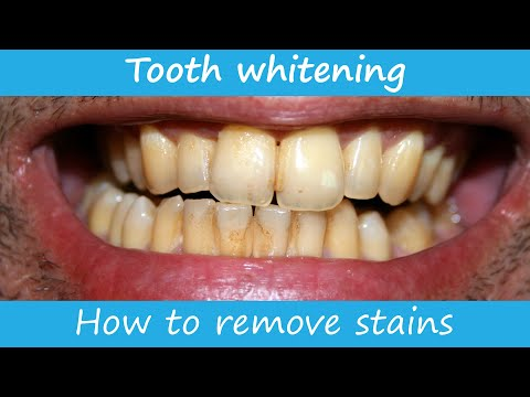 How to remove stains from the teeth