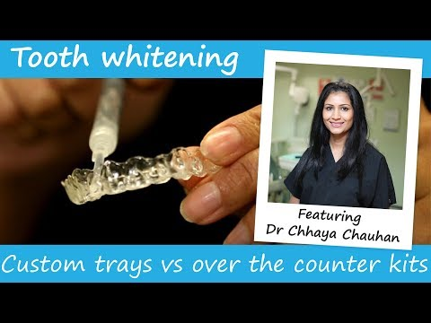 Best Teeth Whitening Which Kits Methods Can You Trust