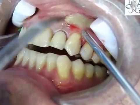 dental abscess drainage...Abscess tooth removal