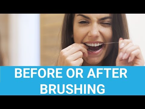 Should You Floss Before Or After Brushing?