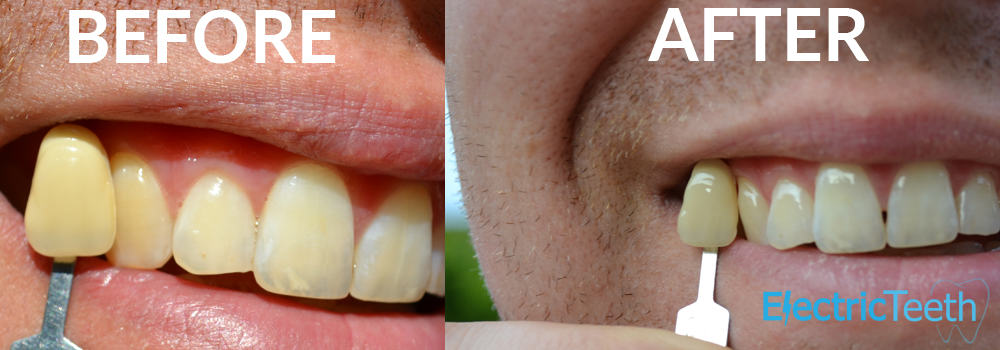 Teeth Whitening Before & After Photos 8