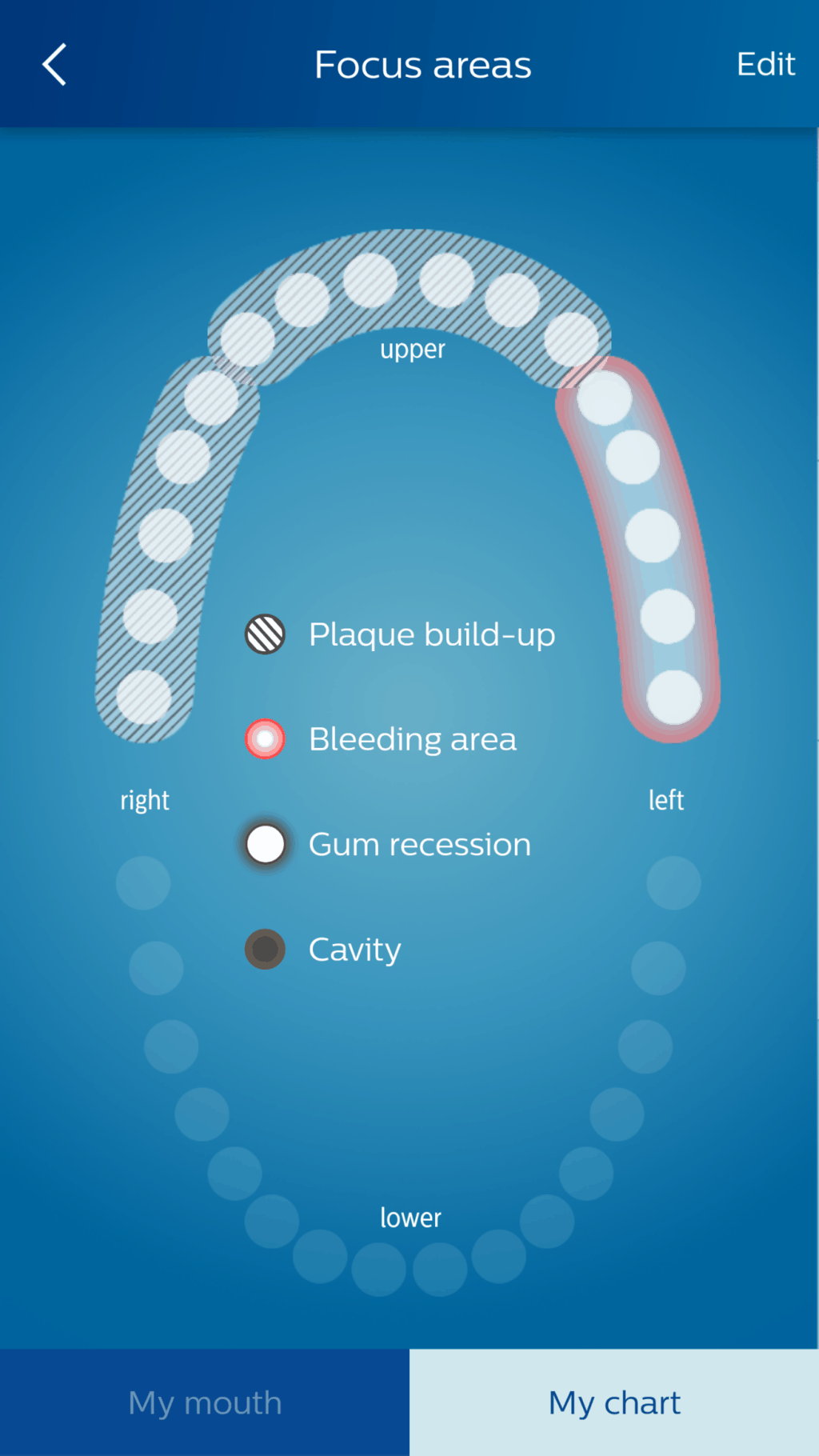 Mouth split into 6 cleaning sections
