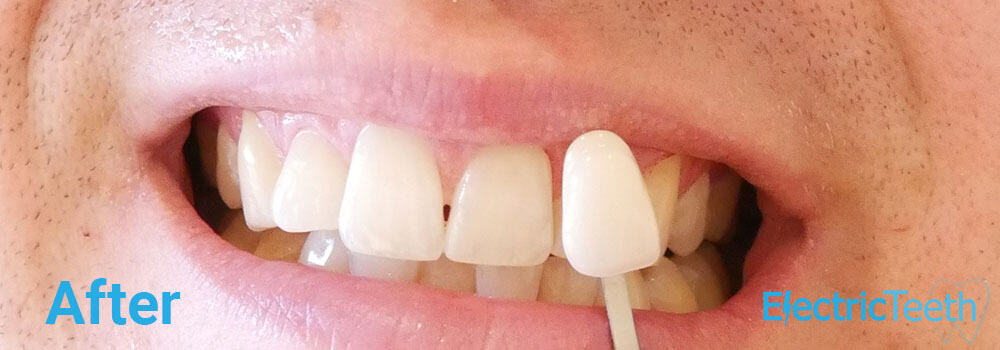 Teeth Whitening Before & After Photos 10