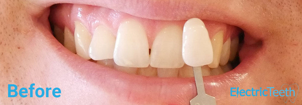 Teeth Whitening Before & After Photos 9