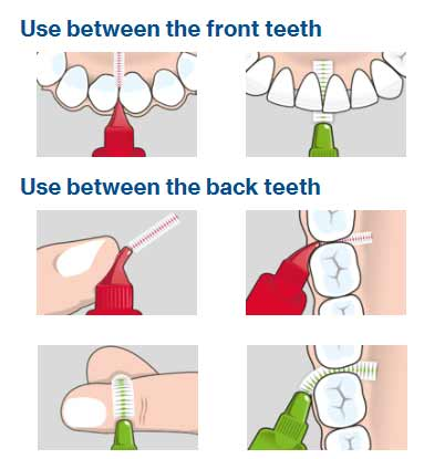 Best Interdental Brushes - A Guide To Buying & Using Them 16
