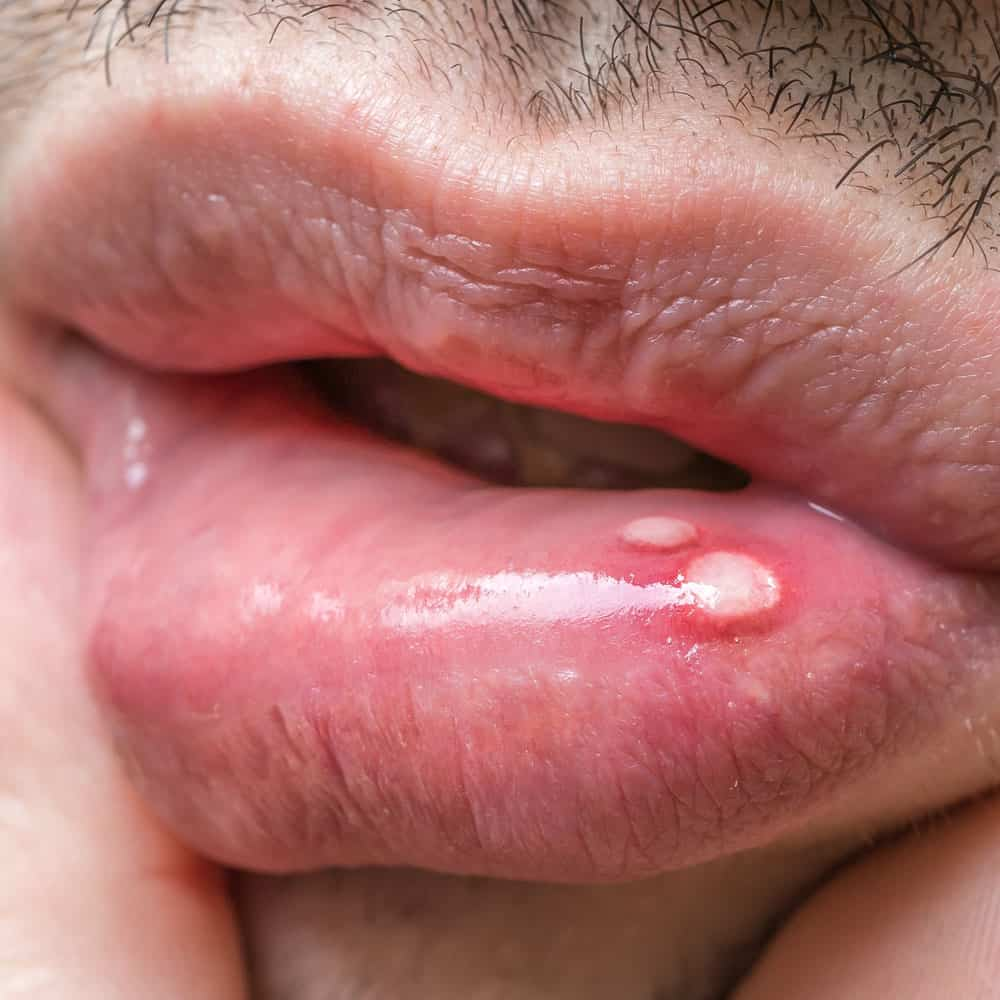 Best treatment for mouth ulcers 9