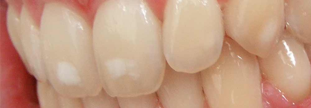 White Spots On Teeth: Why Are They There & How Do You Get Rid Of Them? 3