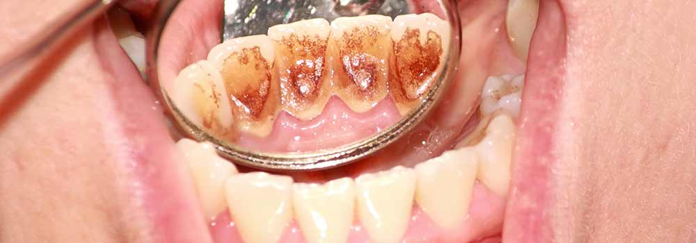 close up of inner tooth decay