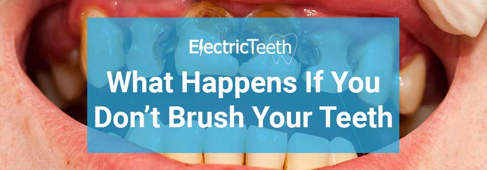 What happens if you don't brush your teeth?