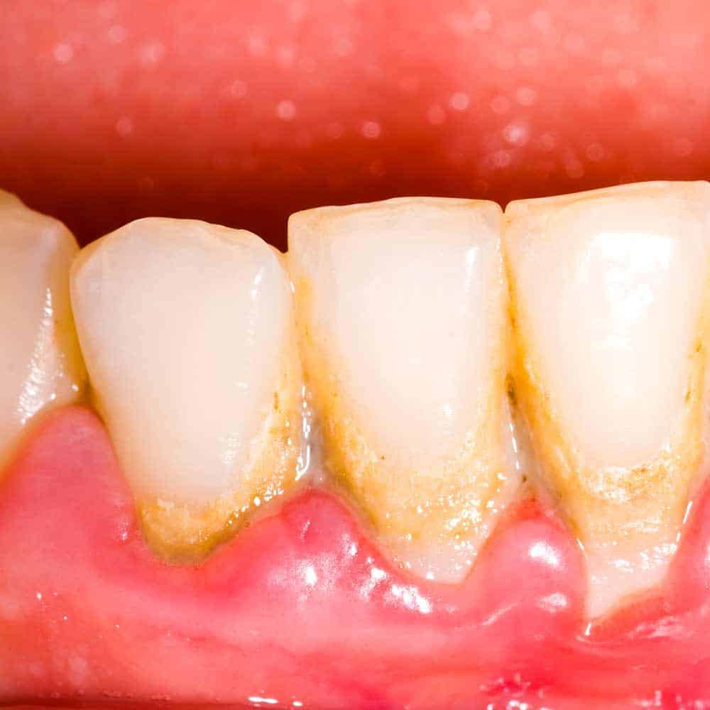 plaque build up around the bottom of the tooth