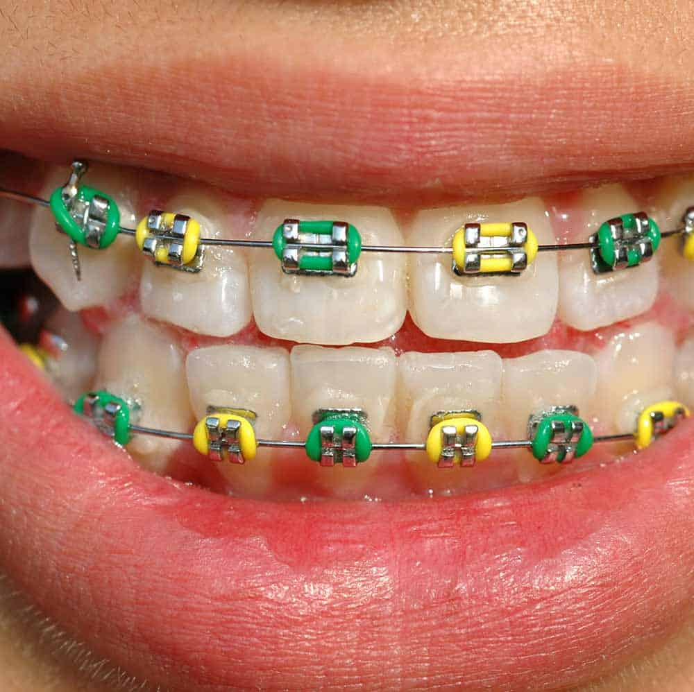 Invisalign Invisible Braces: Reviews, Costs & FAQ 32