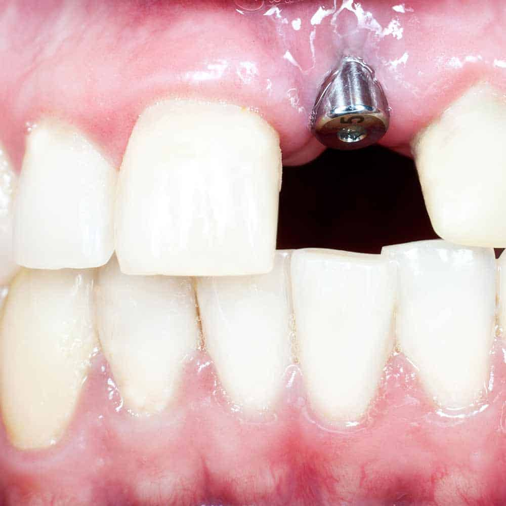 Honest insights into Dental Implants