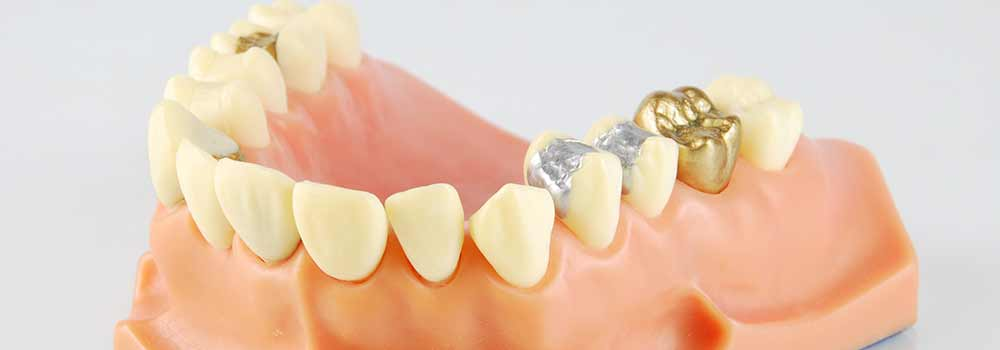 Dentures: a guide to types of false teeth & their costs