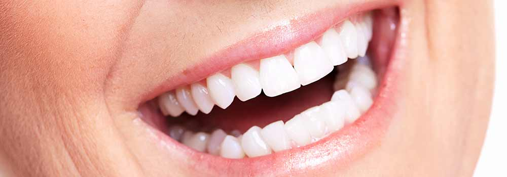 After photo of veneers