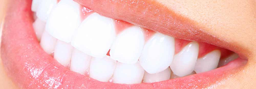 Photo of very white teeth