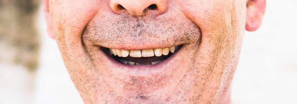 Dentures: a guide to types of false teeth & their costs - Electric Teeth