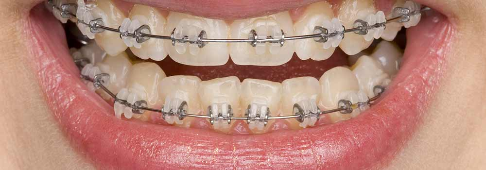 Invisalign Invisible Braces: Reviews, Costs & FAQ 30