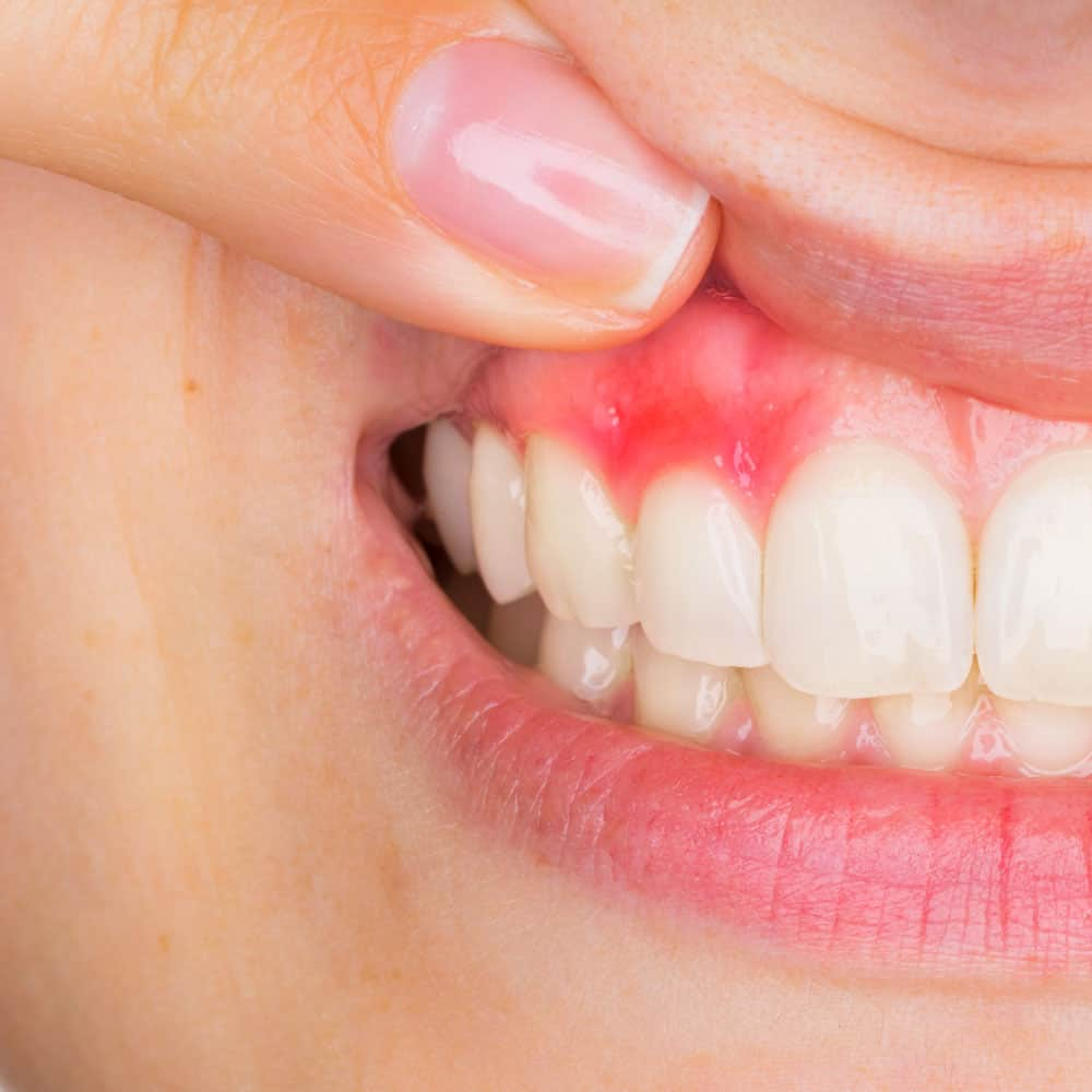 Tooth, mouth & gum abscess treatment: a detailed guide 12