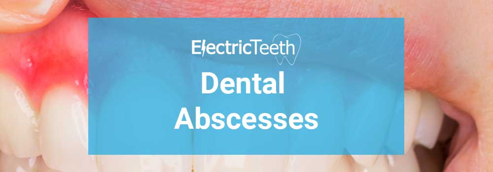 Dental Abscesses Guide - Header Image