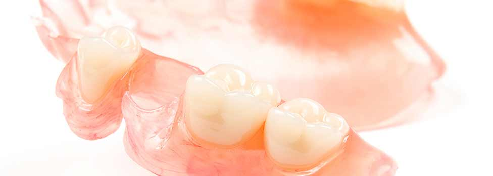 Dentures: a guide to types of false teeth & their costs 5