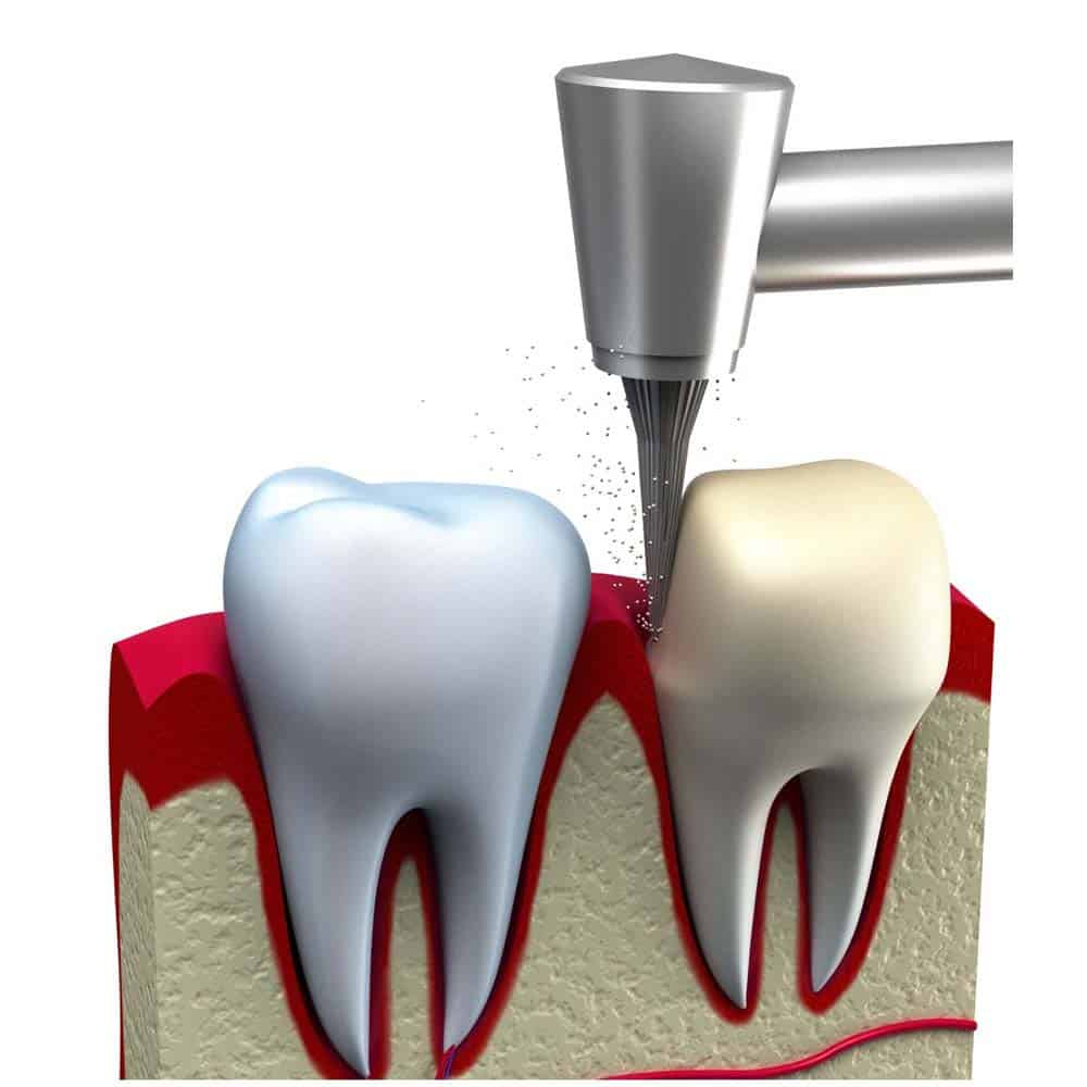 Dental Crowns & Tooth Caps: Costs, Procedure & FAQ