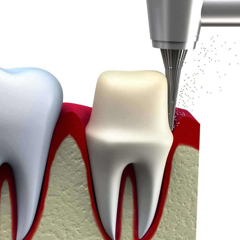 Dental Crowns & Tooth Caps: Costs, Procedure & FAQ