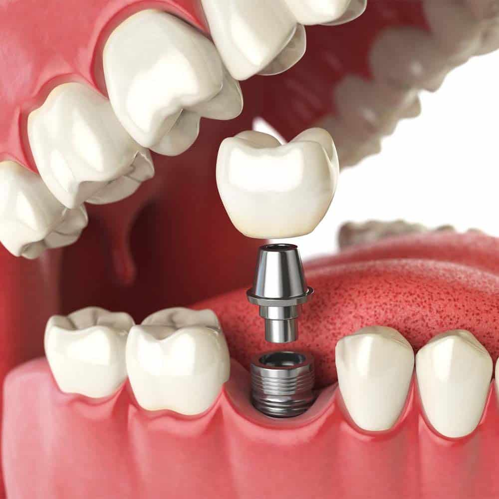 Dental Implants: A Complete Guide To Costs & Procedures