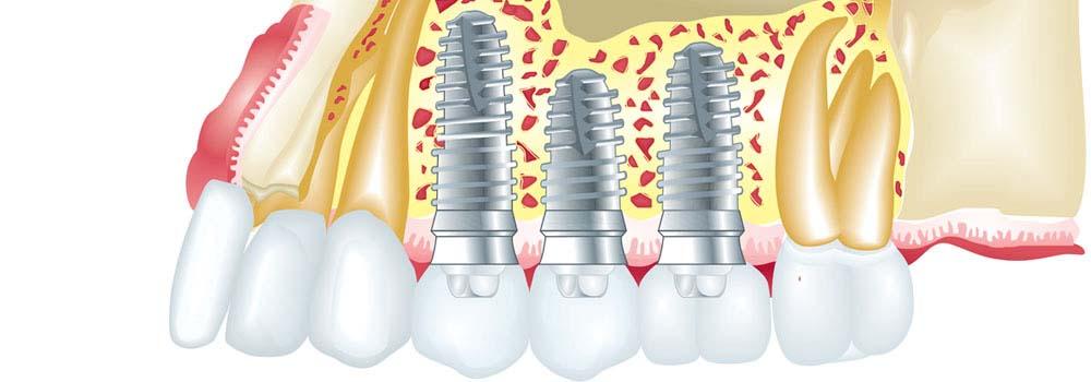 Dental Implants: Costs, Procedure & FAQ (UK) 8
