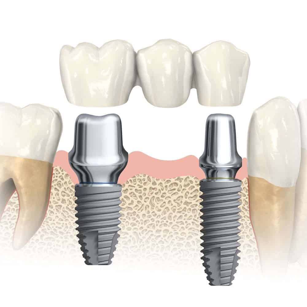 How much do multiple teeth implants cost?