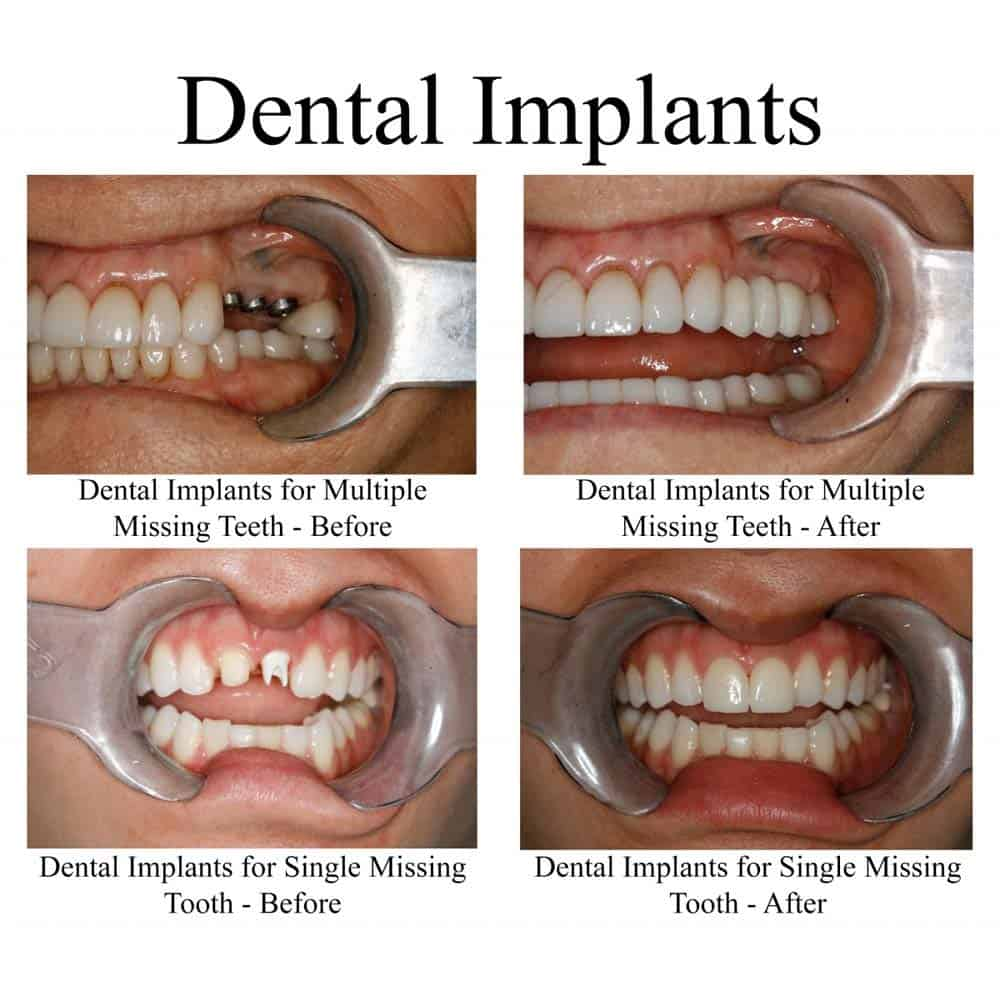 Stages of dental implants