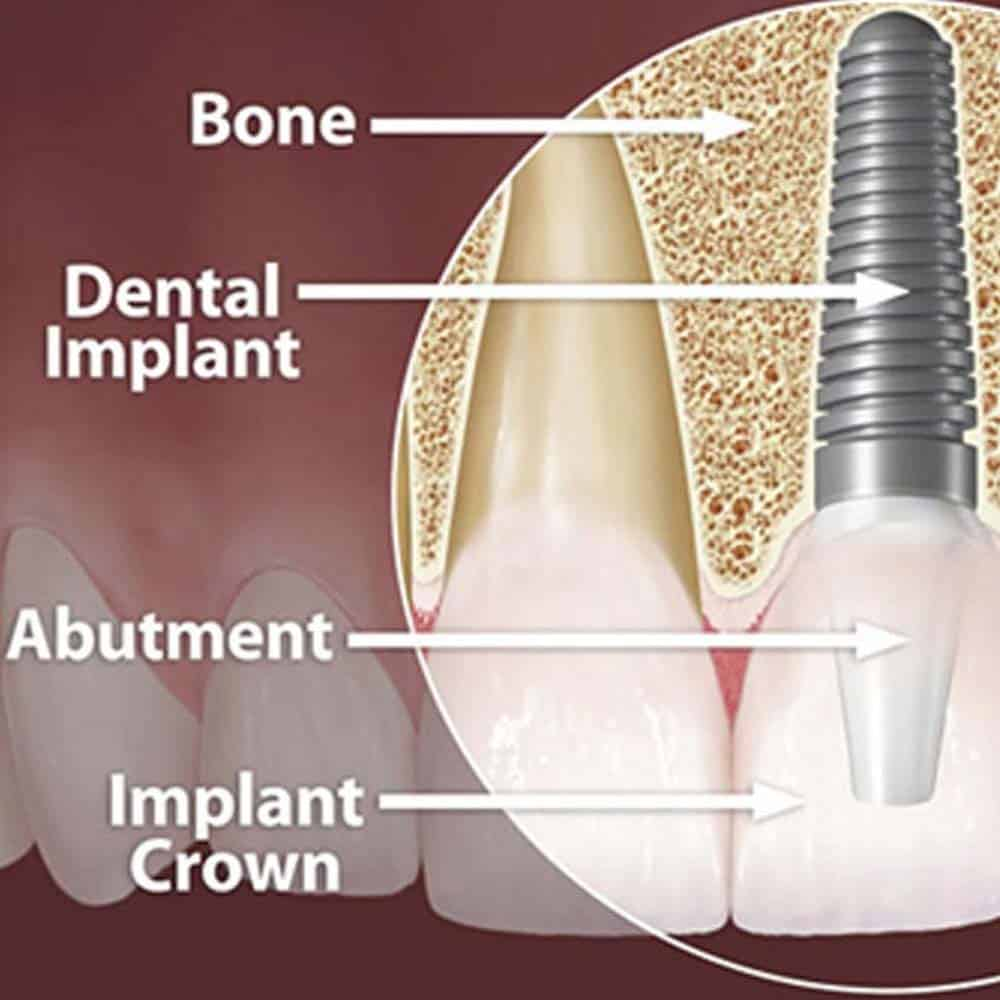 Diagram explaining implants