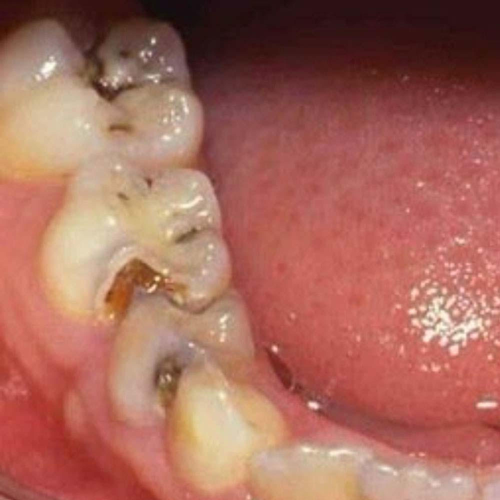 Close up of small and large teeth cavities