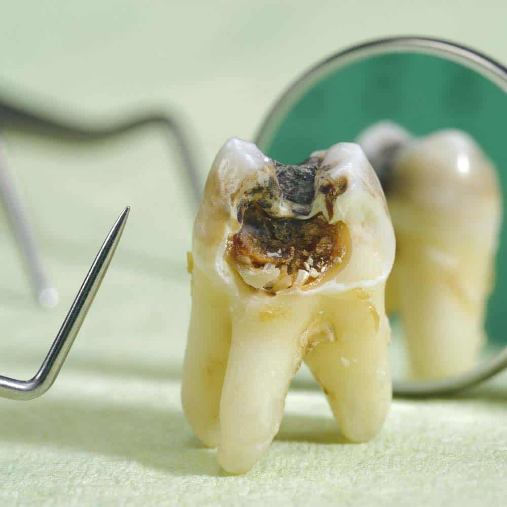 Severe tooth rot on an extracted tooth