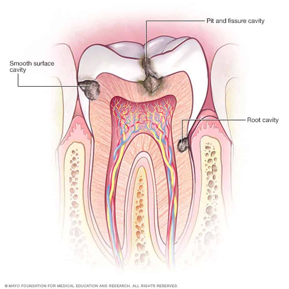 Illustration of tooth with cavities