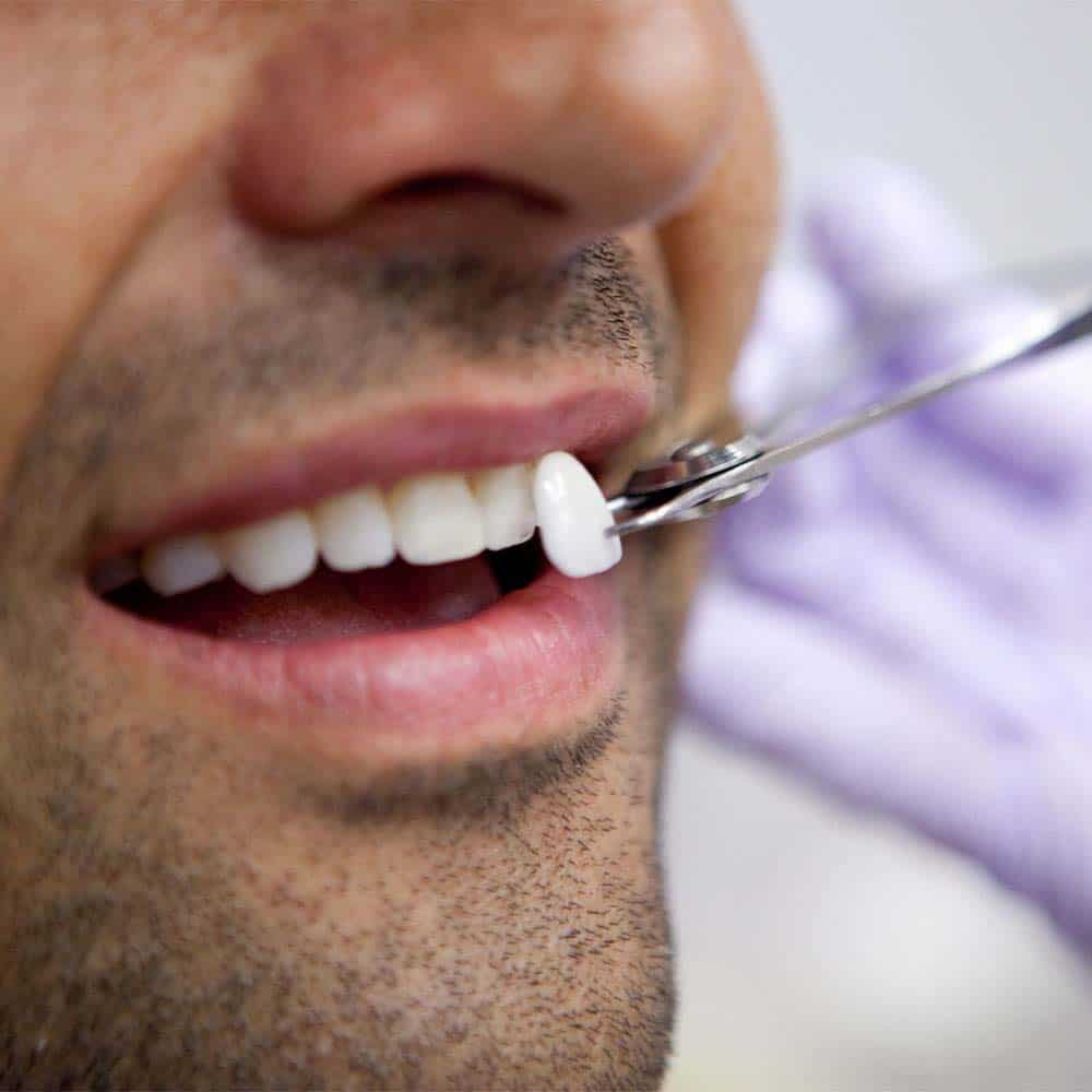 Veneers being placed on tooth