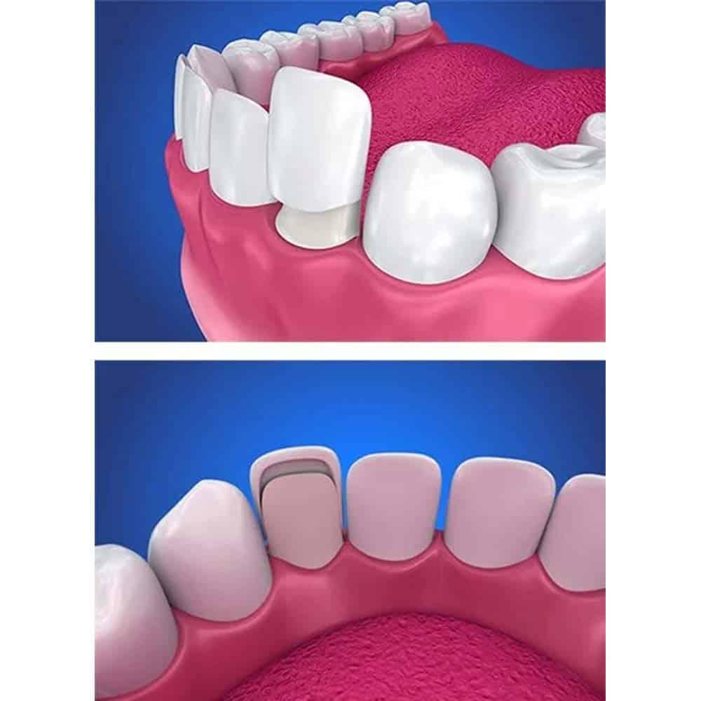 Dental Veneers: Costs, Types, Procedures & FAQ 7