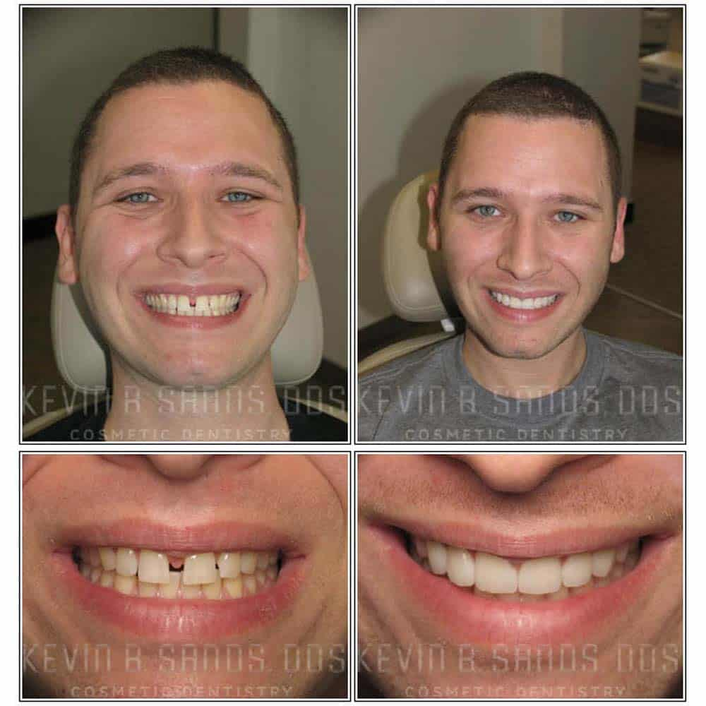 Patients photographs of veneers before and after
