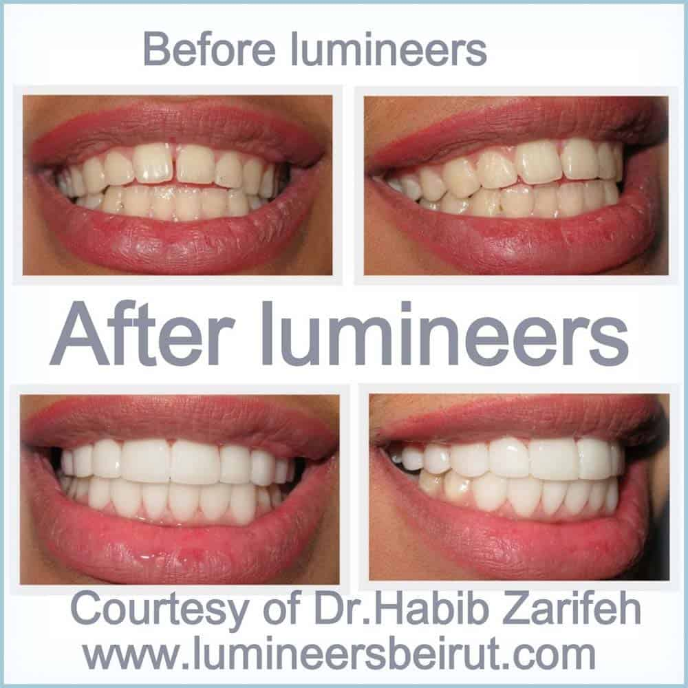 Lumineers before and after