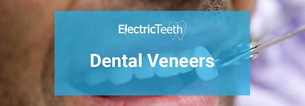 Dental Veneers: Costs, Types, Procedure & FAQ