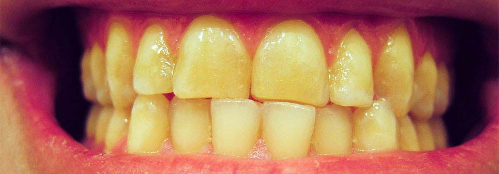 Photo of very yellow teeth