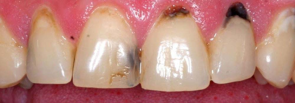 Yellow teeth: what causes them & do you need to worry about it? 21