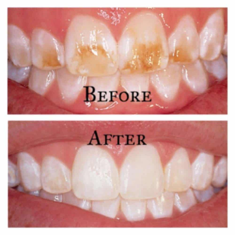 Stained teeth before and after