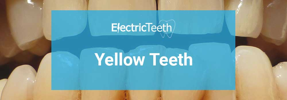 Yellow teeth: what causes them & do you need to worry about it?