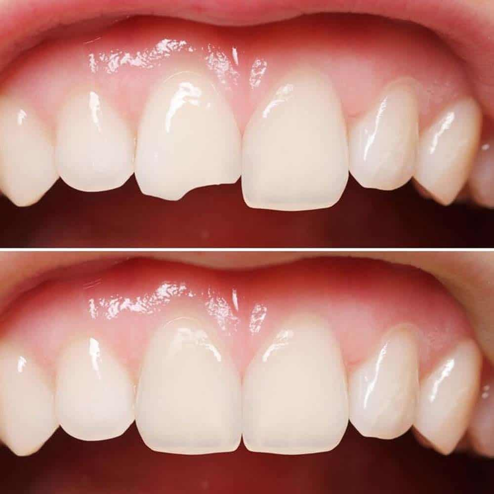 Photo of broken tooth repair before and after